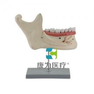 """""""康为医疗""""下颌恒牙解剖"""