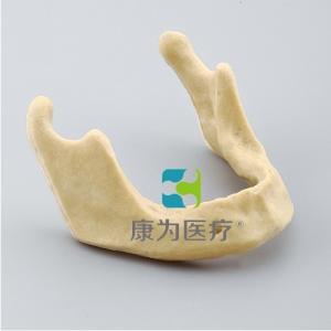"""""""康为医疗""""下颌骨种植模型"""