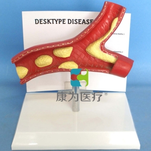 """""""康为医疗""""动脉病态血管剖面模型"""